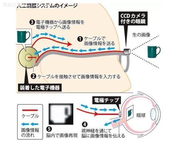 视力模拟图 日本媒体报导,这种「人工视网膜」并不是指人工合成的视网膜,而是由一个装配了特殊 CCD 镜头的眼镜,化身过往的眼睛,并透过植入到脑部的微型电子装置对影像进行分析,转化成电极并传送到脑部的视力中心,取代原有眼睛的功用,在脑部中构成我们日常所看到的画面。不过目前这个技术只能做到黑白的影像,虽然与正常视力还有一段距离,但总算大概可分辨出物件的形状。目前这个技术在去年正式进行临床试验,3 名完全失明人士在使用了这套装置之后,已经可以依照路上的白线行走等等需要视力协助的简单动作,希望在 2018 年再